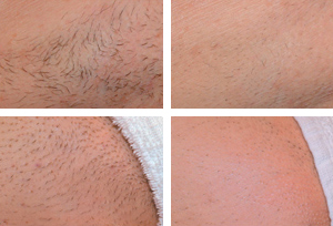 Hair-Removal_Before-After