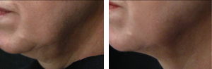 Skin-Tightening_Before-After