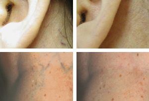 Vein_Before-After